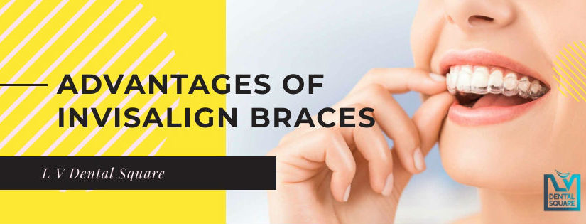 Advantages of invisaligh braces over metal braces