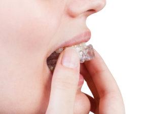 Invisalign or invisible braces