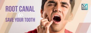 root canal treatment to save the tooth
