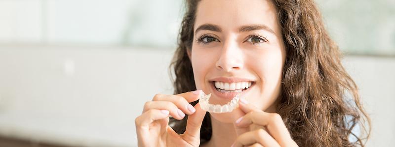 dental retainers bangalore