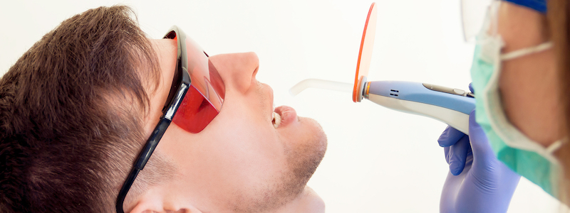 dental sealants bangalore