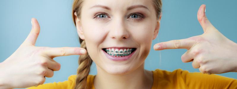 metal braces bangalore