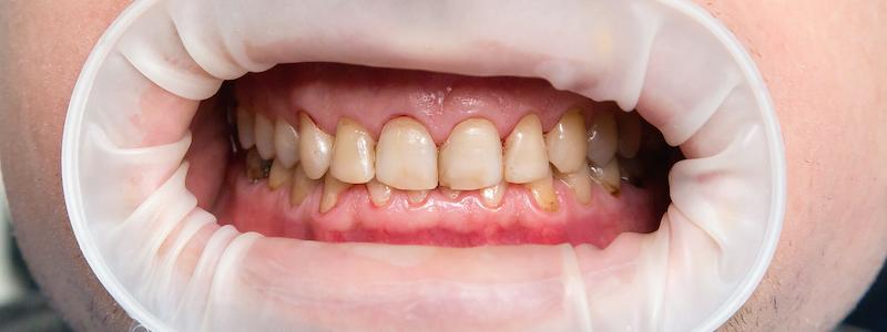 Dental Fluorosis treatment in bangalore