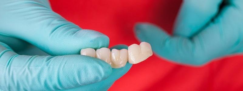 Dental bridges in bangalore LV dental square