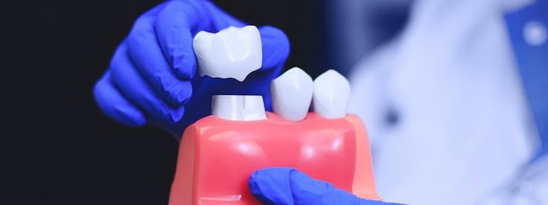 Dental crowns in bangalore L V Dental Square