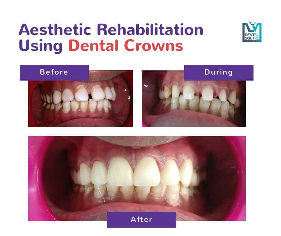 dental crowns before and after L V Dental Square bangalore