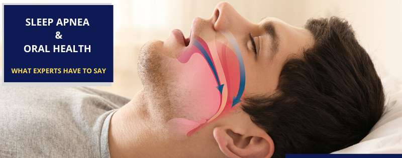 Sleep Apnea and Oral health What experts have to say