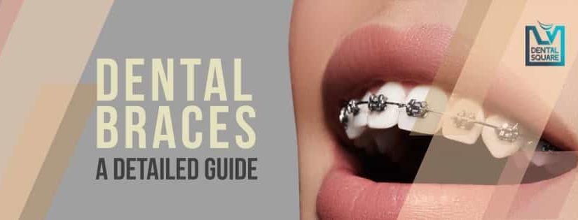 dental braces in bangalore